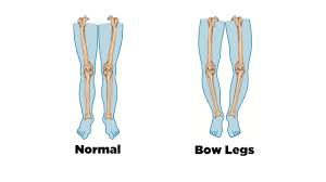 cure bow legs